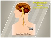 Vagus Nerve Stimulation PowerPoint Templates