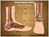 Metatarsal Ankle Joint PowerPoint Templates