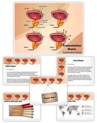 Prostate Cancer Stages Editable PowerPoint Template