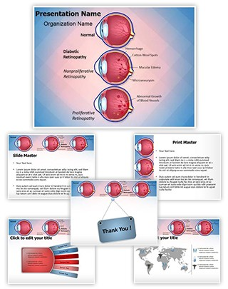 Retinopathy Diabetic Retinopathy Editable PowerPoint Template