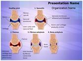 Synovial Rheumatoid Arthritis Stages PowerPoint Templates