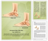 Pes Planus Flat Foot Template