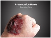 Burned Hand PowerPoint Templates